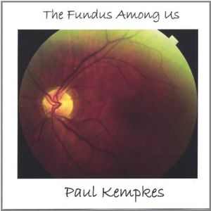 Fundus Among Us