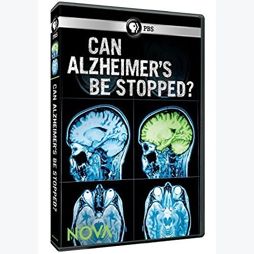 Nova: Can Alzheimer's Be Stopped