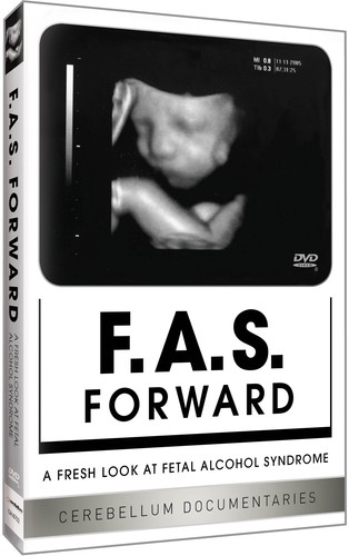 Fas Forward: Fresh Look at Fetal Alocohol