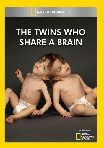 Twins Who Share a Brain