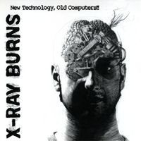 X-Ray Burns - New Technology Old Computers