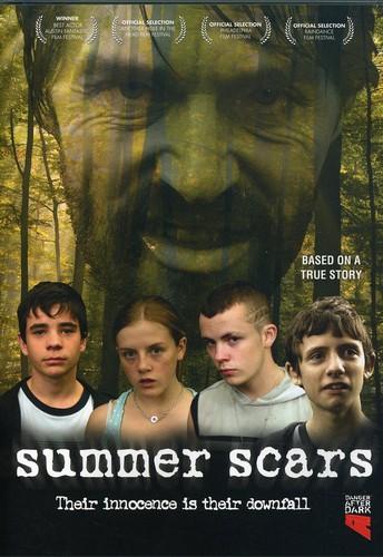 Summer Scars