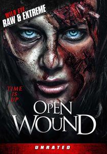 Open Wound